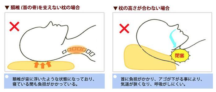 めりーさんの高反発枕 頸椎(首の骨)を支える設計1